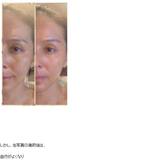 杉本彩プロデュースの美顔器ララルーチュ